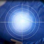 Derungs Triango 100 LED Treatment Light Fokus light field diameter diagram